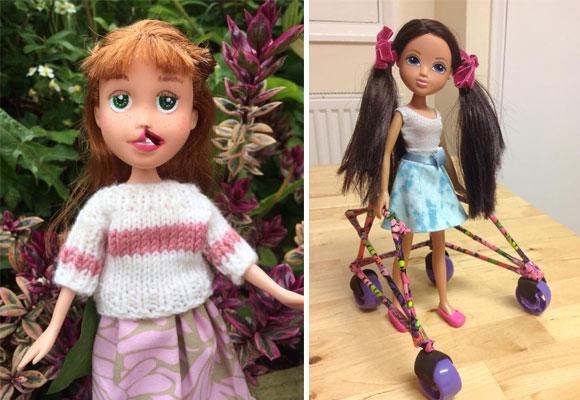 Muñecas con labio leporino y andador. Toys Like Me. Haz clic para comprarlas