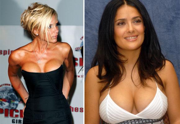 Algunas actrices se colocan implantes por motivos estéticos