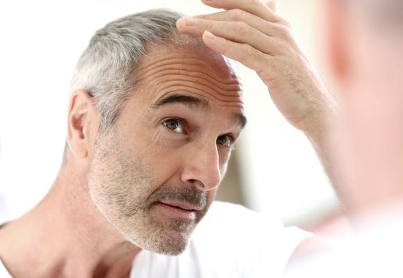 La prevención es fundamental para evitar la caída del pelo