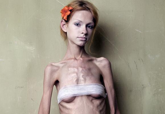 Lux video autoimagen anorexica